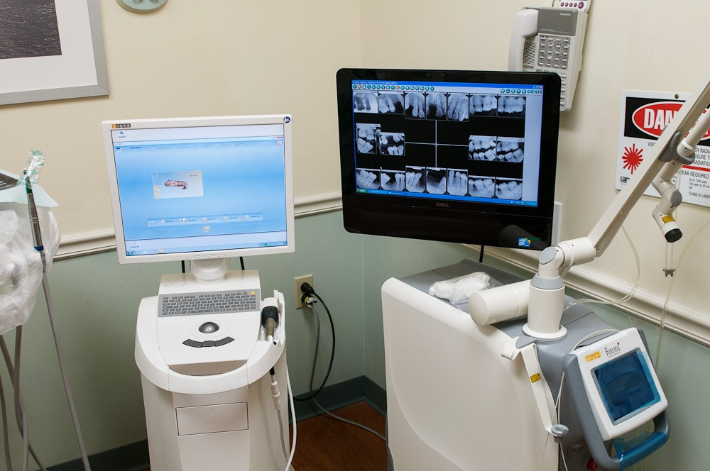 CEREC One Day crowns in Cheshire, CT